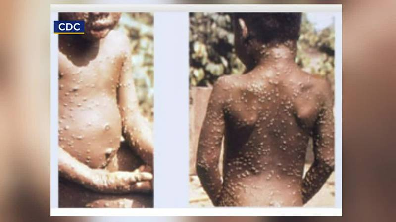 A Dallas resident came down with the dangerous infectious disease after visiting Nigeria....