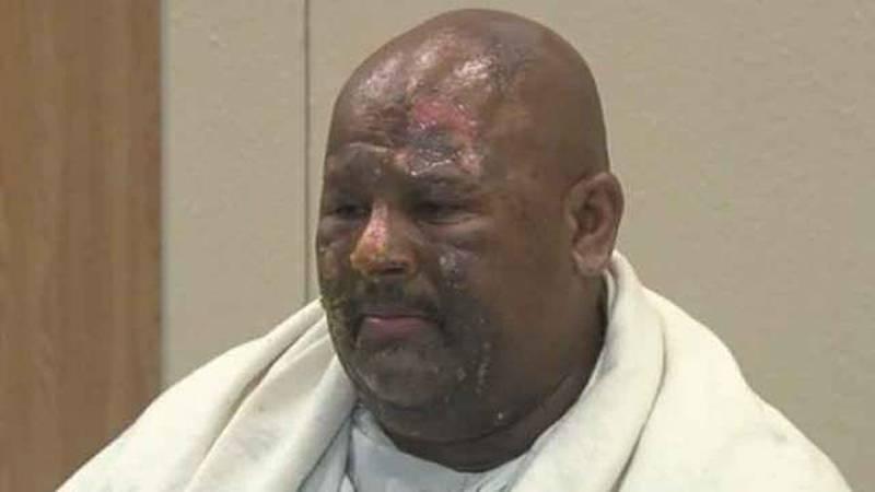 Injured stunt man speaks day after Atlantic High School accident